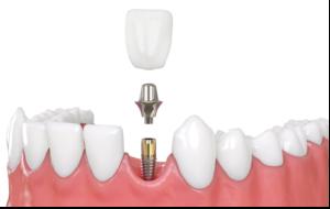 lege-artis-implantatpflege