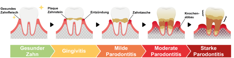 paradontitisprophylaxe-lege-artis